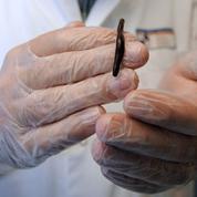 Le laboratoire français qui fournit des milliers de sangsues aux hôpitaux