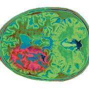 Le Gard touché par un excès de tumeurs cérébrales