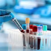 Les premiers tests sérologiques annoncés en France cette semaine