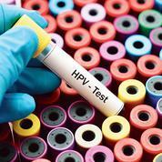 Avec le test HPV, de nouvelles stratégies et de futurs défis pour le dépistage du cancer du col