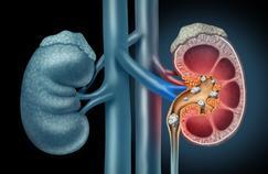 Calculs urinaires: douloureux mais sans lourdes conséquences