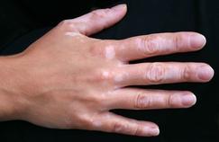 Vitiligo : «Le poids des regards est parfois pesant»