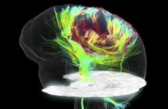 Cancer du cerveau : un traitement expérimental par immunothérapie