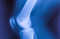 Transformer une cheville en genou