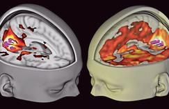 Le LSD pourrait-il devenir un médicament?