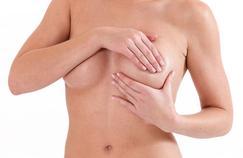 Cancer du sein: les gynécologues défendent le dépistage