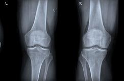 L'arthrose du genou est deux fois plus fréquente qu'il y a 100 ans