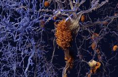 Stimuler le système immunitaire, une piste pour traiter Alzheimer ?