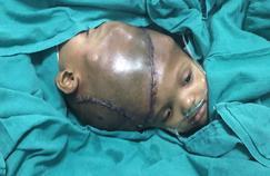 En Inde, des siamois liés par la tête ont été séparés avec succès