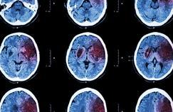 AVC hémorragique: «j'ai senti une explosion dans ma tête»