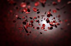 L'hémophilie, une maladie rare du sang, a été guérie par thérapie génique