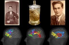 Ces trois accidents qui ont révolutionné les neurosciences