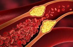 AVC, infarctus: pourquoi le tabac est à l'origine de maladies cardiovasculaires?