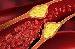 AVC, infarctus: pourquoi le tabac est-il à l'origine de maladies cardiovasculaires?