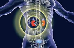 Cancer du rein : l'ablation n'est plus indispensable