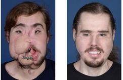 Défiguré par une tentative de suicide, un Américain a reçu un nouveau visage