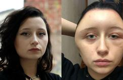 Coloration pour cheveux: une jeune femme met en garde contre le risque d'allergie