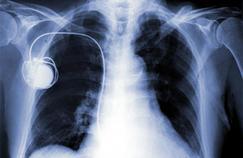 Implants médicaux: un rapport parlementaire pointe les défaillances du système