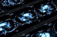 Google a développé une intelligence artificielle capable de détecter les cancers du poumon