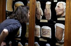 Musée des moulages, une plongée dans la médecine du XIXesiècle