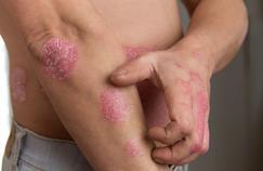 Psoriasis: gare aux médicaments qui peuvent l'aggraver