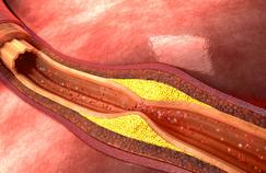 Athérosclérose: comment savoir si nos artères sont en mauvaise santé?