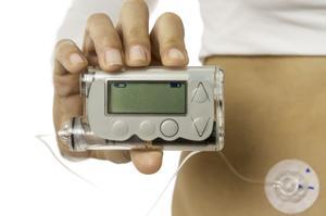 Avec une pompe à insuline, un petit tuyau est placé en permanence sous la peau.