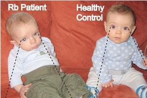 À gauche, un patient atteint de rétinoblastome et à droite, un patient sain.