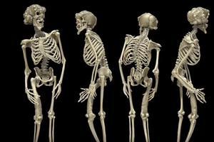 Squelette de Joseph Merrick, conservé Royal London Hospital.