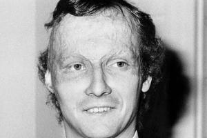 Niki Lauda en 1977 après son accident.