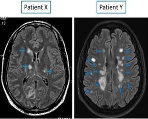 Plaques visibles dans le cerveau de deux patients atteints de SEP.