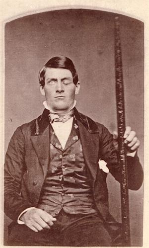 Photo de Phineas Gage après son accident