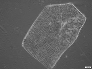 Le patch cellulaire vu au microscope optique