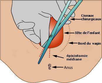 Épisiotomie médio-latérale.
