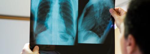 Coronavirus: que se passe-t-il dans les poumons des patients gravement malades?