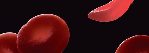 La thérapie génique à l'assaut d'anomalies de l'hémoglobine