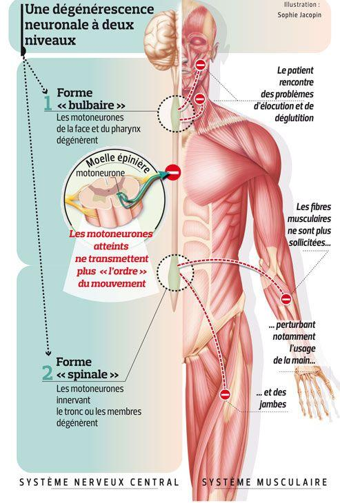 système nerveux central maladie