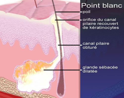 L'accumulation de sébum, qui continue d'être sécrété par la glande, entraîne alors un renflement de la peau centré par une zone blanchâtre.