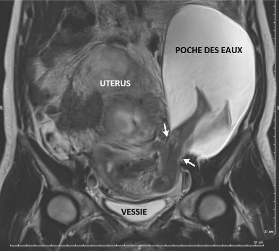 Imagerie par résonance magnétique (IRM) de l'abdomen de la mère.