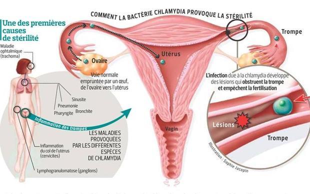 Environ 10% des femmes porteuses d'une infection par Chlamydia non traitée depuis un an ont une lésion des trompes.