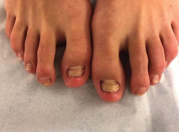 La jeune femme présentait 6 ongles particulièrement abîmés.