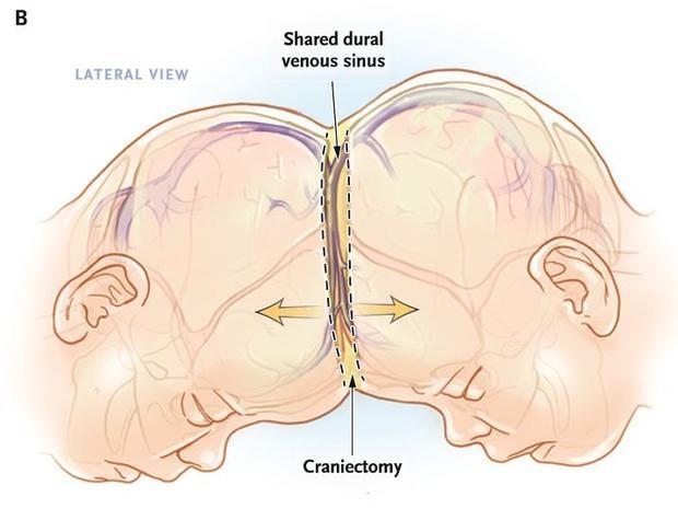 À la naissance, les fillettes partageaient une veine très importante pour la vascularisation du cerveau.