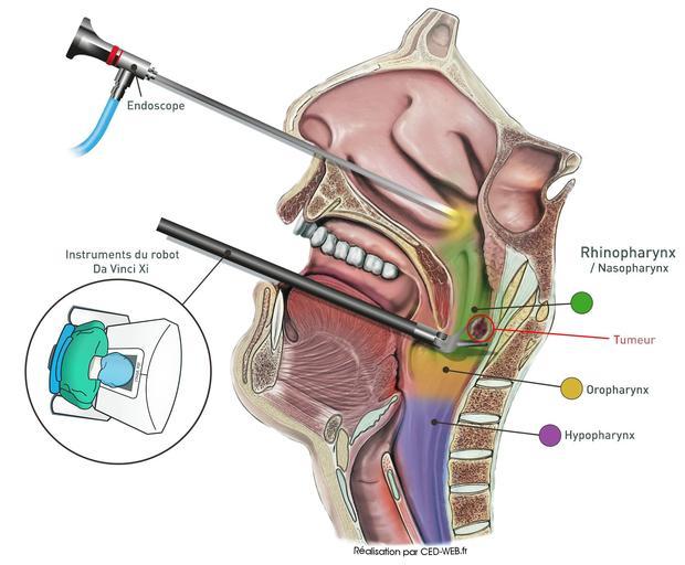 Les chirurgiens ont pris en étau la tumeur, grâce à la combinaison de deux techniques: le robot Da Vinci Xi et l'endoscopie.