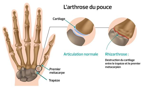 L'arthrose de la base pouce: une destruction progressive du cartilage
