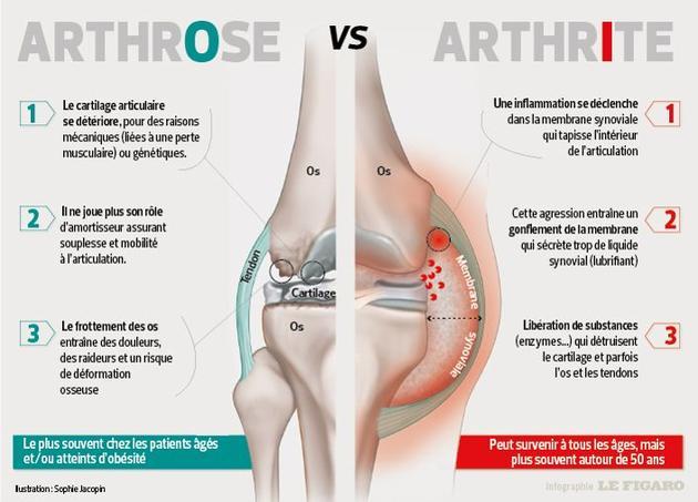 L'arthrose est une usure d'origine mécanique tandis que l'arthrite est liée à une inflammation.