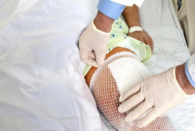 Un genou artificiel pour davantage de mobilité