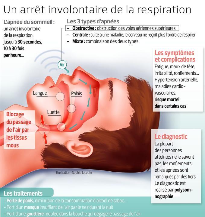 apnées du sommeil symptômes