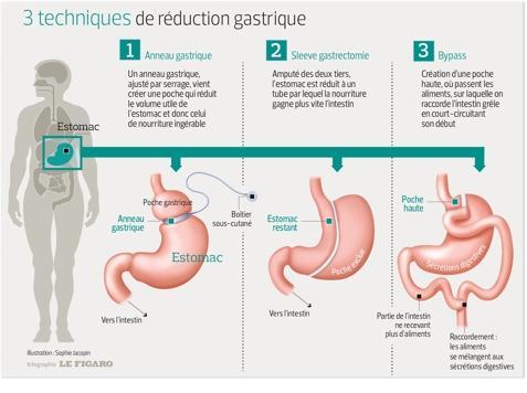 histoires de perte de poids de bande gastrique