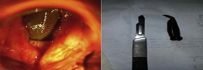 À gauche, la nasofibroscopie montrant la sangsue; à droite la sangsue extraite.