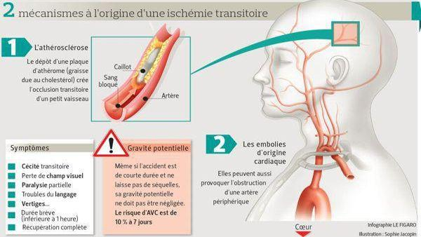 Le dépôt d'une plaque d'athérome (graisse due au cholestérol crée l'occlusion transitoire d'un petit vaisseau.